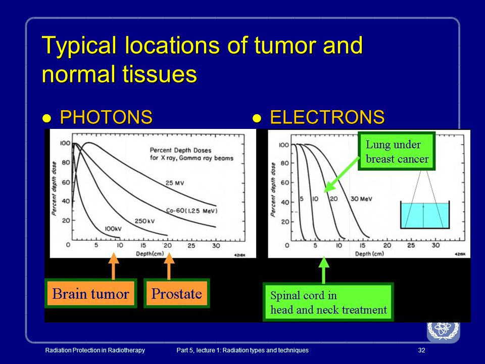 Typical locations of tumor and normal tissues