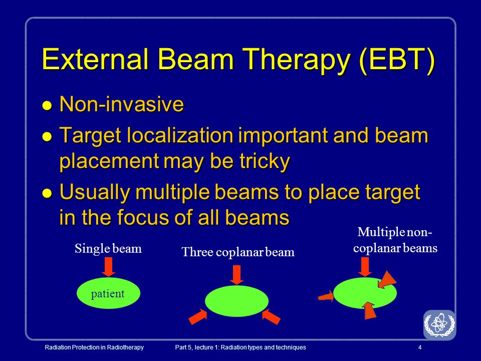 External Beam Therapy (EBT)