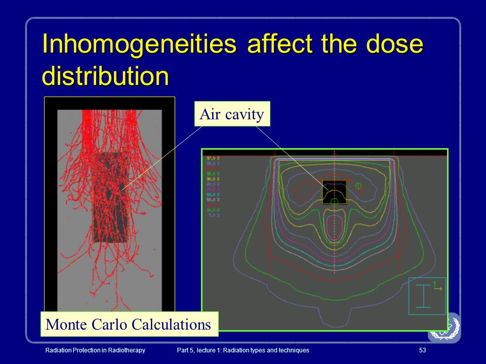 Inhomogeneities affect the dose distribution