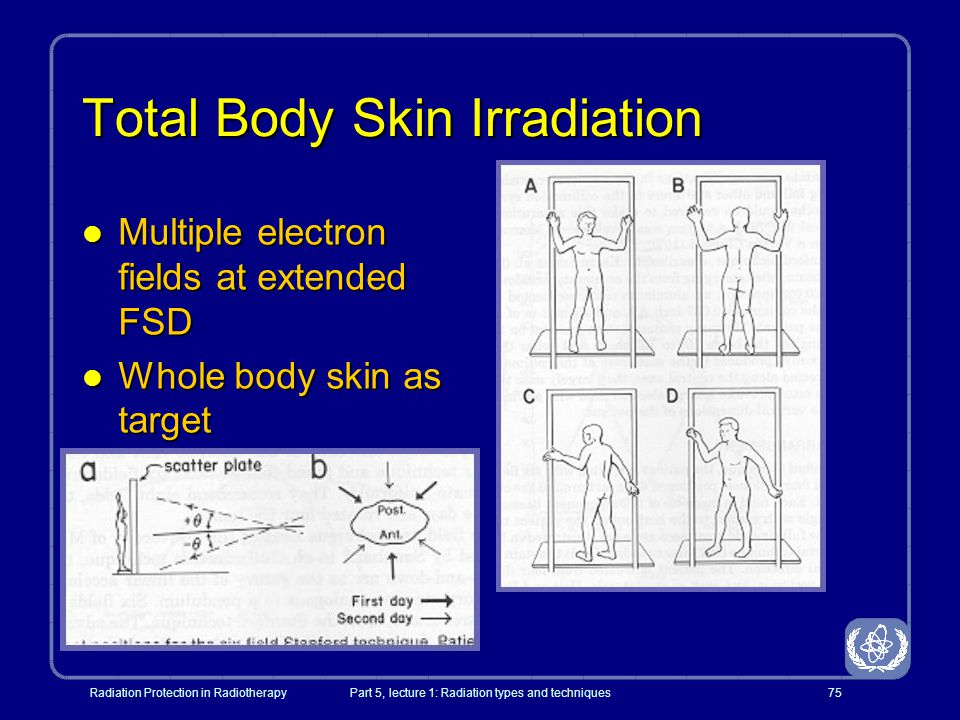 Total Body Skin Irradiation
