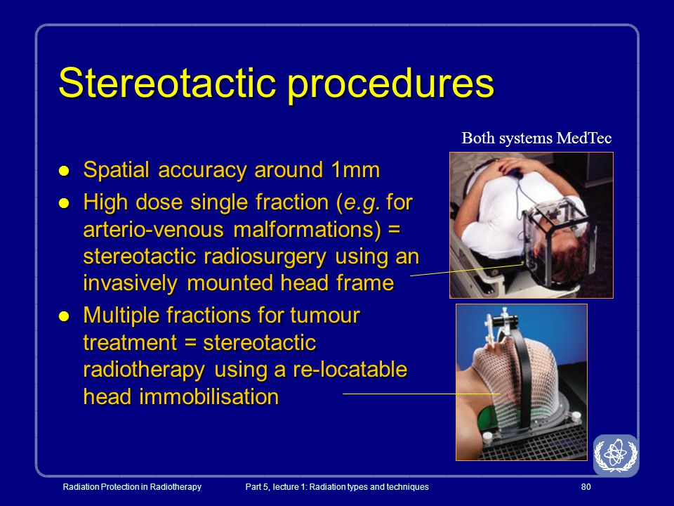 Stereotactic procedures