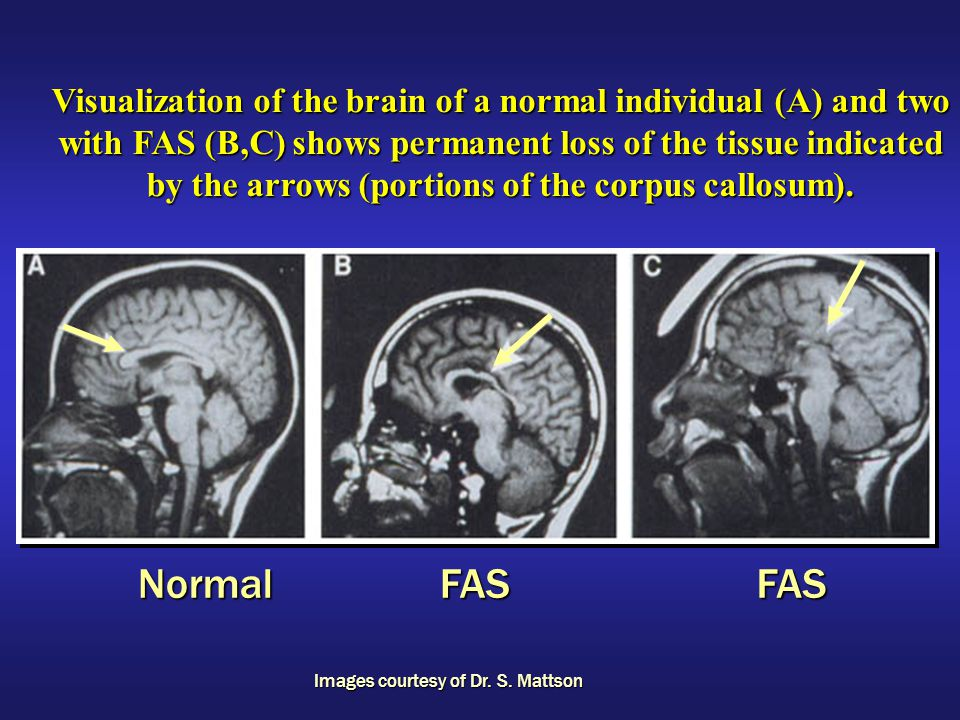 Visualization of the brain of a normal individual (A) and two with FAS (B,C) shows permanent loss of the tissue indicated by the arrows (portions of the corpus callosum).