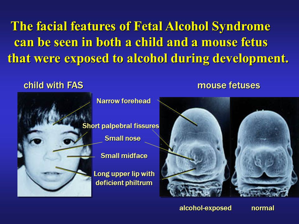 stopping fetal alcohol syndrome Alcohol is the leading known preventable cause of mental and physical birth defects in canada fetal alcohol syndrome or fas is a disorder of permanent birth defects that occurs in the offspring of women who drink alcohol during pregnancy.