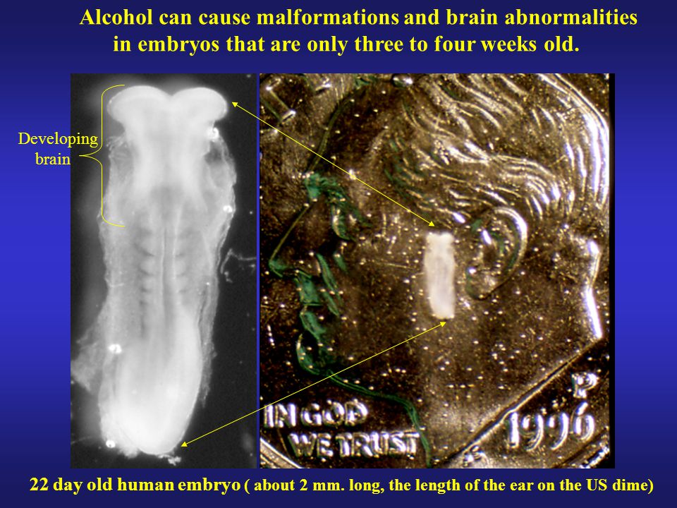 Alcohol can cause malformations and brain abnormalities