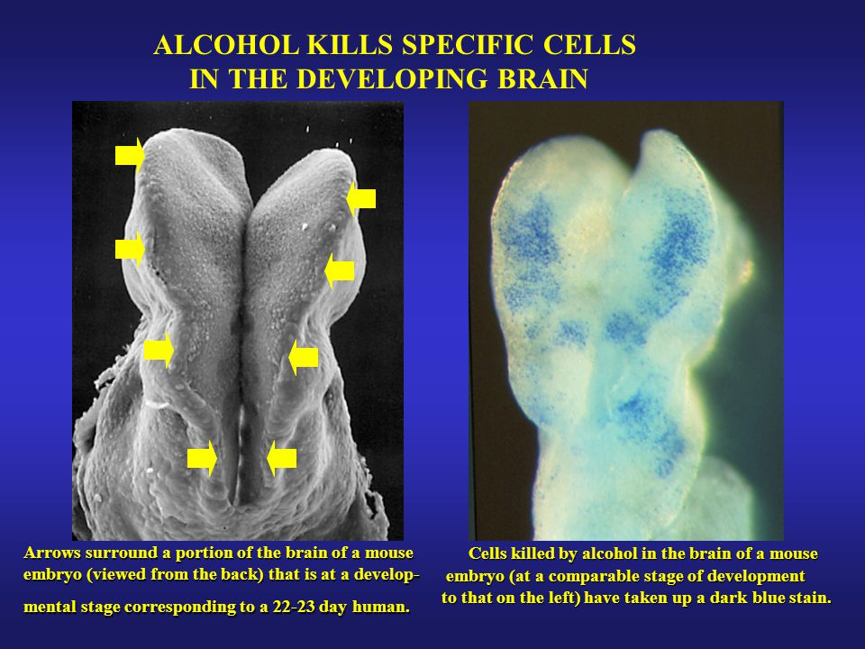 ALCOHOL KILLS SPECIFIC CELLS IN THE DEVELOPING BRAIN