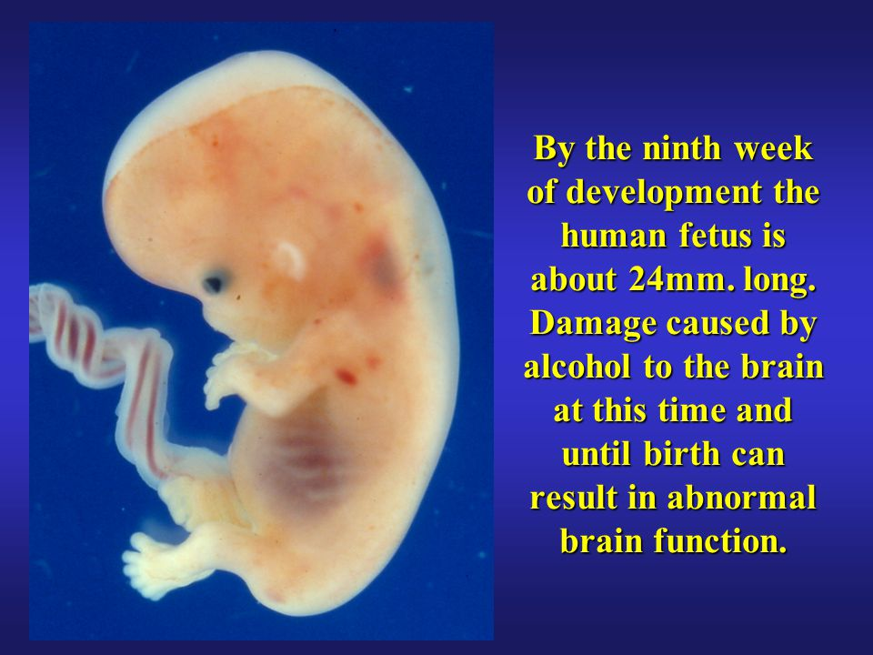 By the ninth week of development the human fetus is about 24mm. long