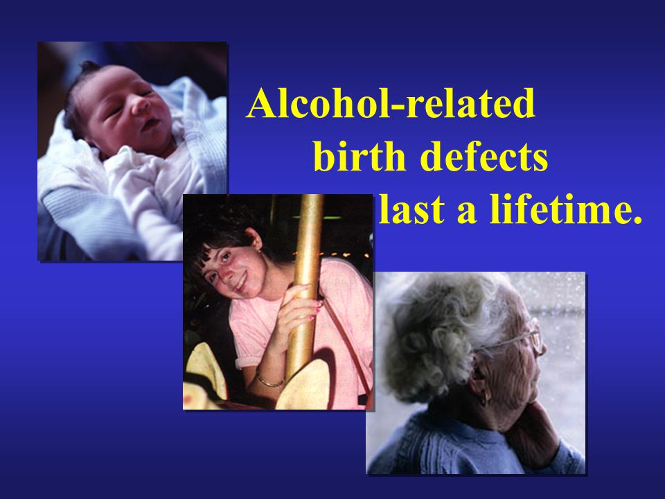 Alcohol-related birth defects last a lifetime.