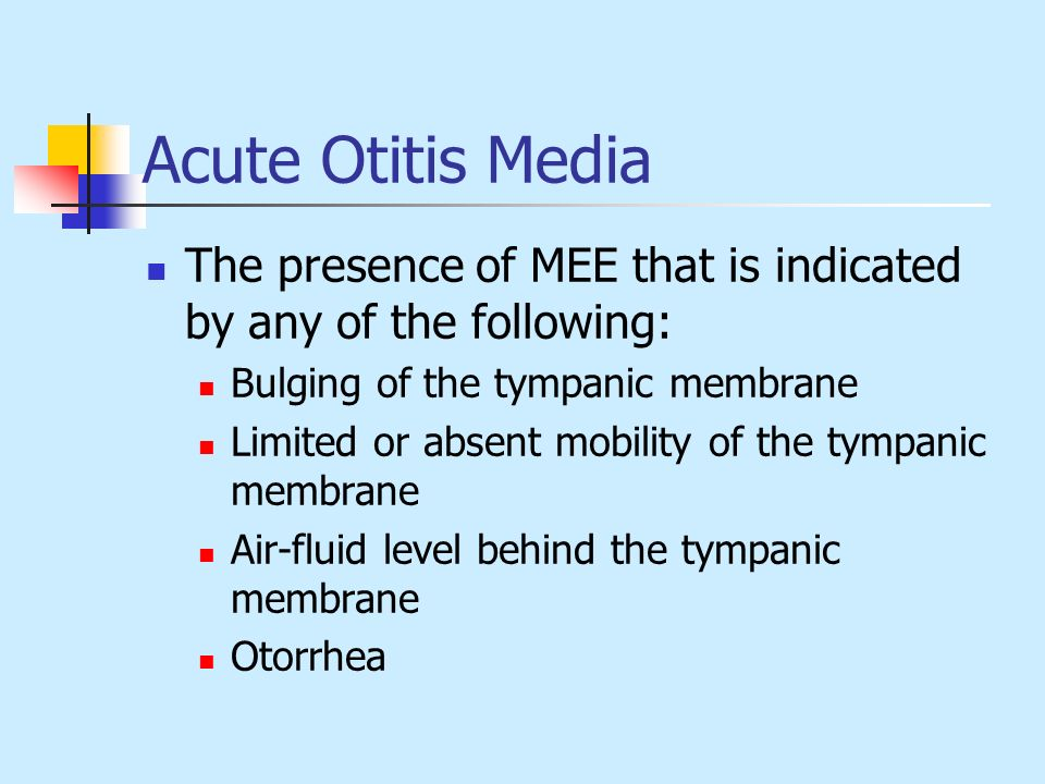 Acute Otitis Media The presence of MEE that is indicated by any of the following: Bulging of the tympanic membrane.