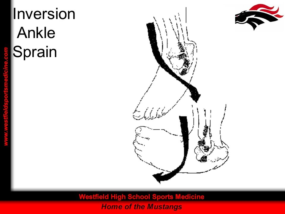 Inversion Ankle Sprain