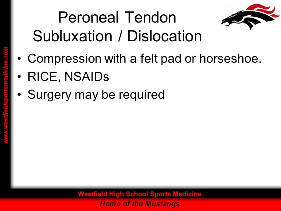 Peroneal Tendon Subluxation / Dislocation