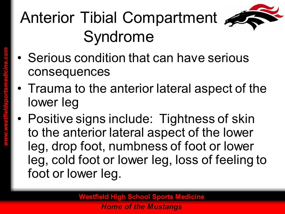 Anterior Tibial Compartment Syndrome