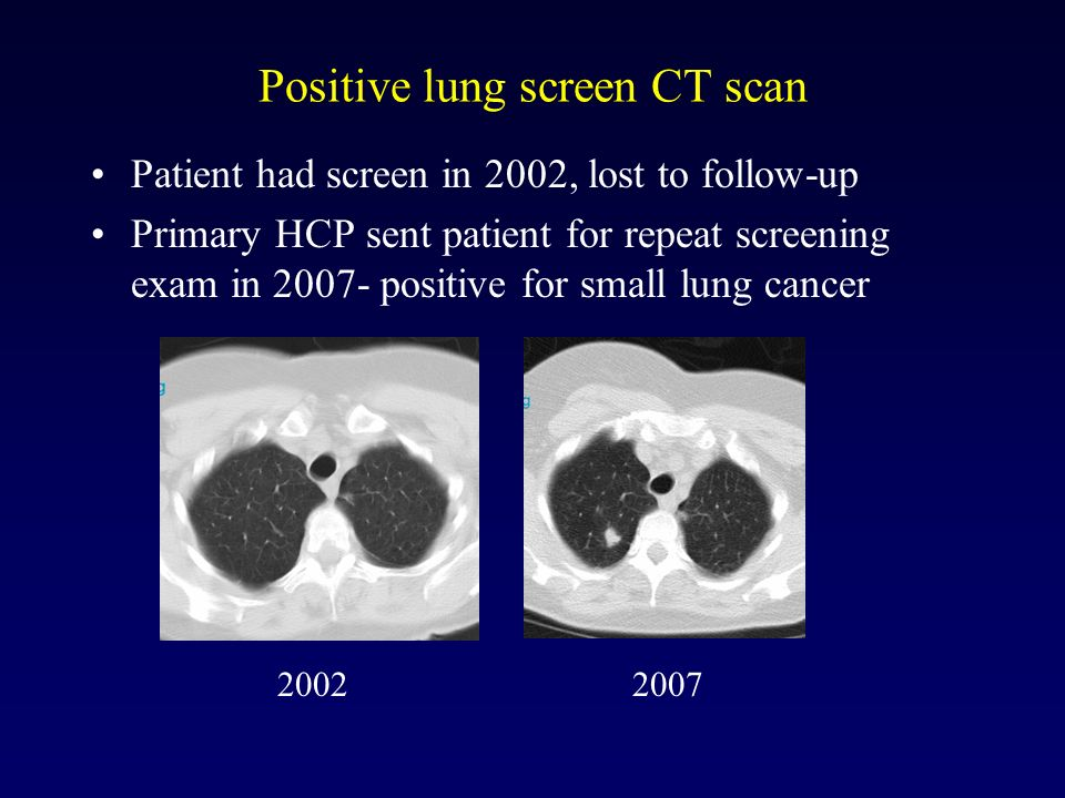 Positive lung screen CT scan