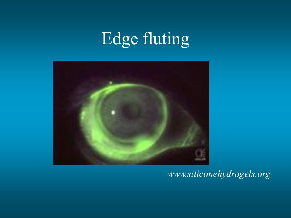 Edge fluting www.siliconehydrogels.org
