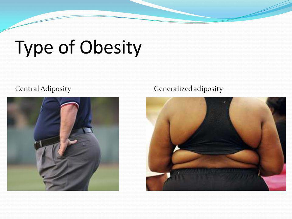 Type of Obesity Central Adiposity Generalized adiposity