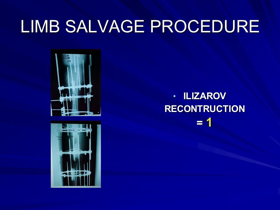 LIMB SALVAGE PROCEDURE