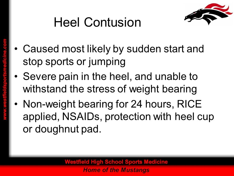 Heel Contusion Caused most likely by sudden start and stop sports or jumping.