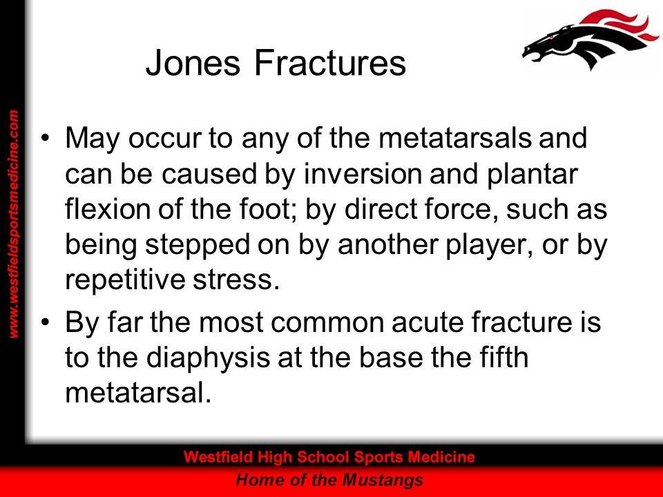 Jones Fractures