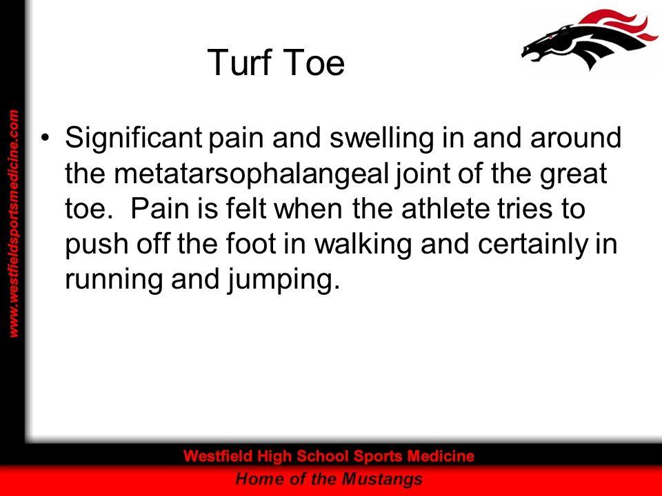 Turf Toe