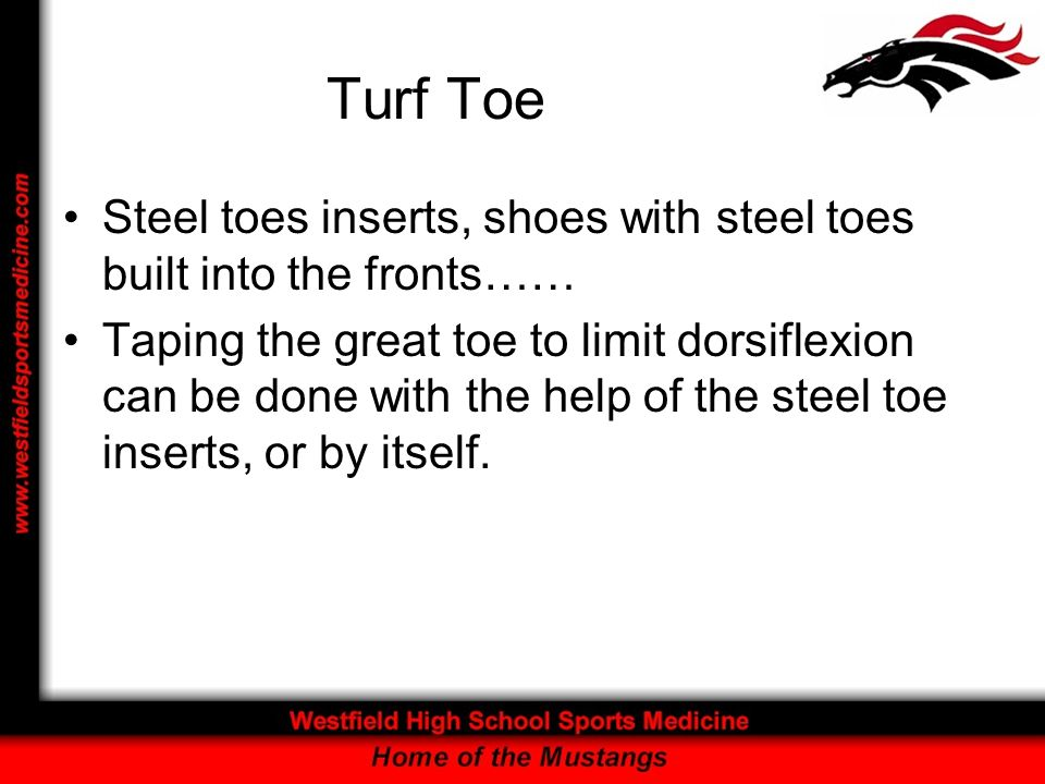 Turf ToeSteel toes inserts, shoes with steel toes built into the fronts……
