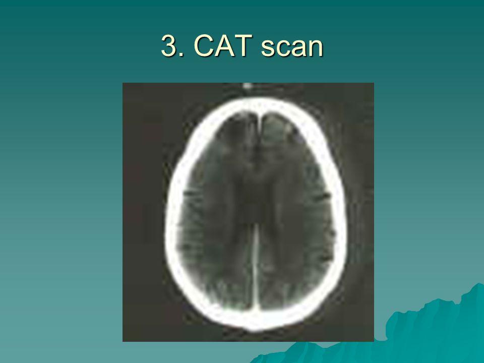 3. CAT scan
