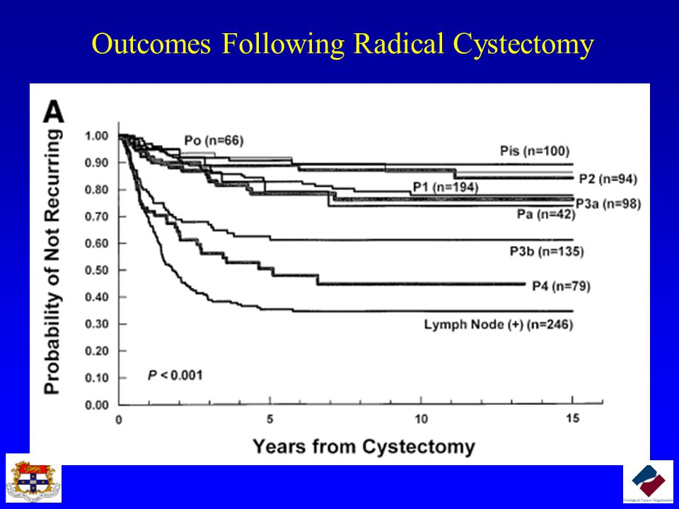 Outcomes Following Radical Cystectomy