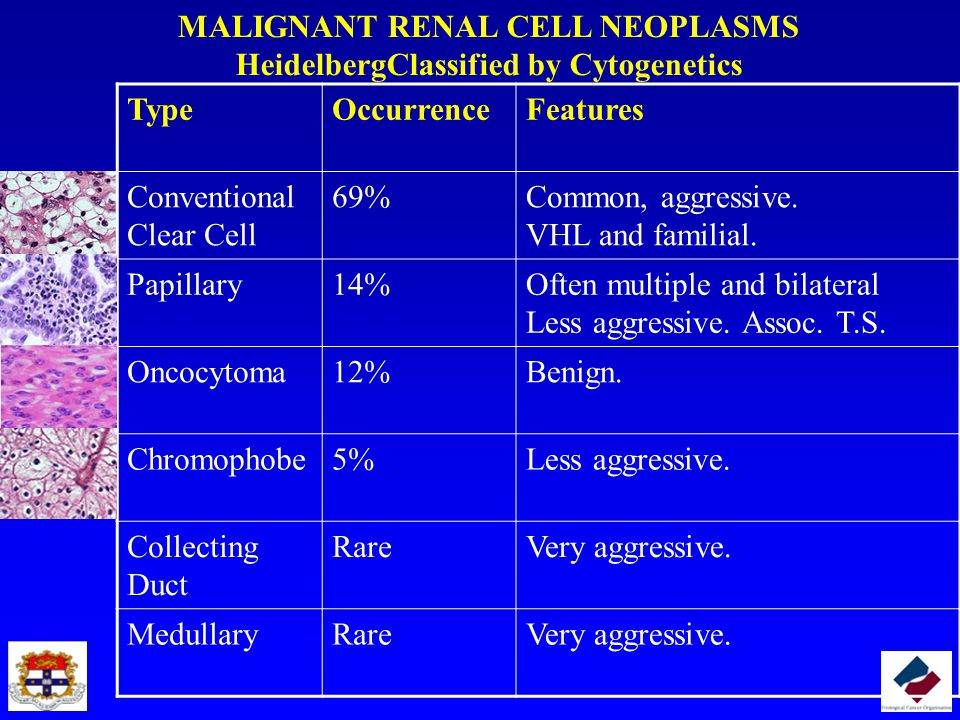 MALIGNANT RENAL CELL NEOPLASMS HeidelbergClassified by Cytogenetics