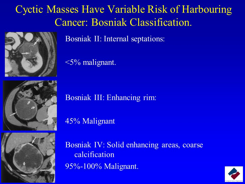 Cyctic Masses Have Variable Risk of Harbouring Cancer: Bosniak Classification.