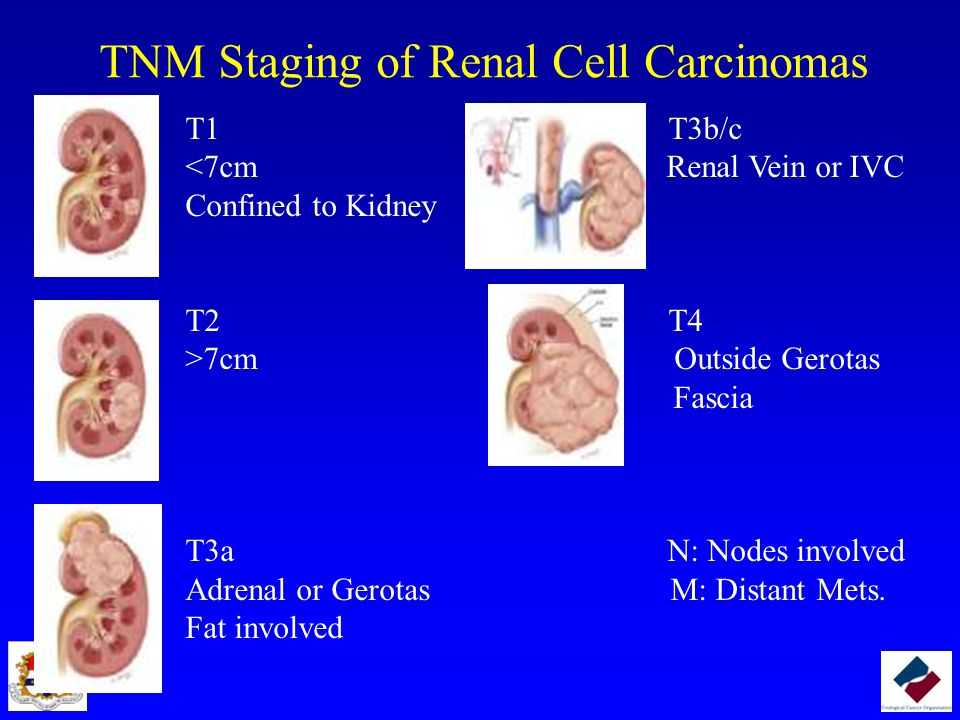 TNM Staging of Renal Cell Carcinomas