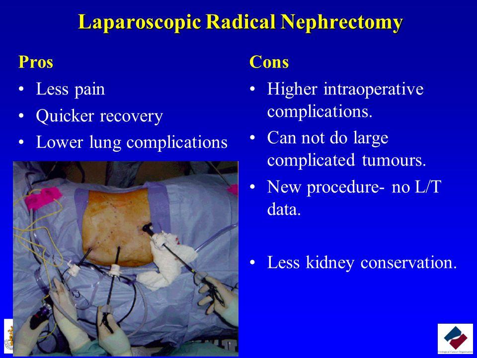 Laparoscopic Radical Nephrectomy