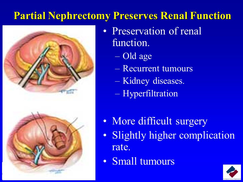 Partial Nephrectomy Preserves Renal Function