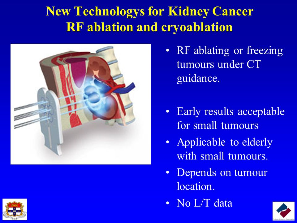New Technologys for Kidney Cancer RF ablation and cryoablation