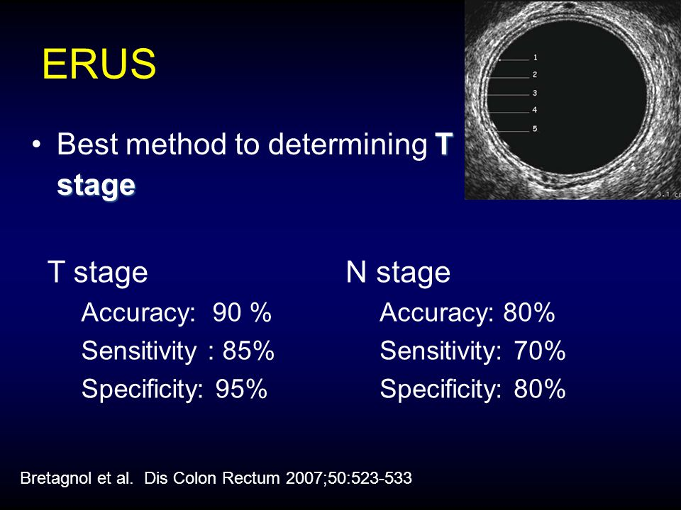 ERUS Best method to determining T stage T stage N stage Accuracy: 90 %