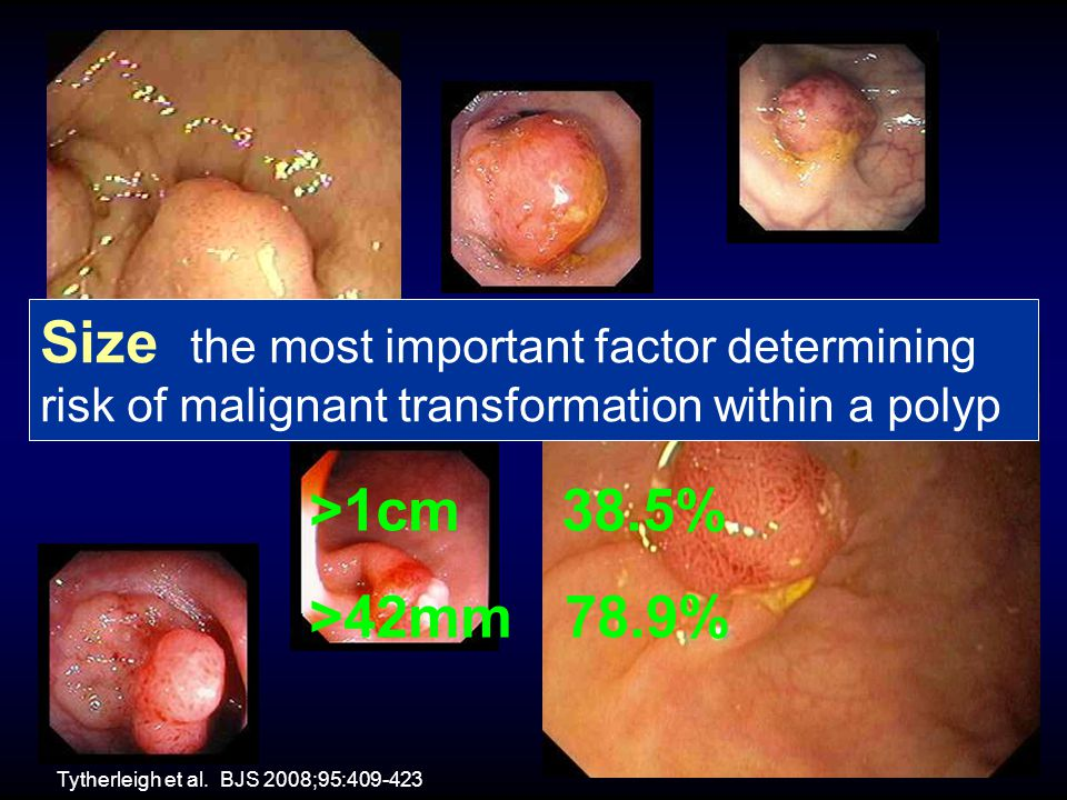 Size the most important factor determining risk of malignant transformation within a polyp