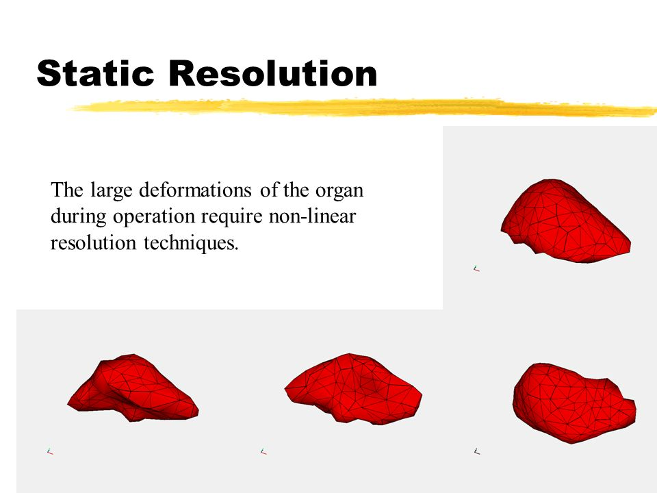 Static Resolution The large deformations of the organ during operation require non-linear resolution techniques.