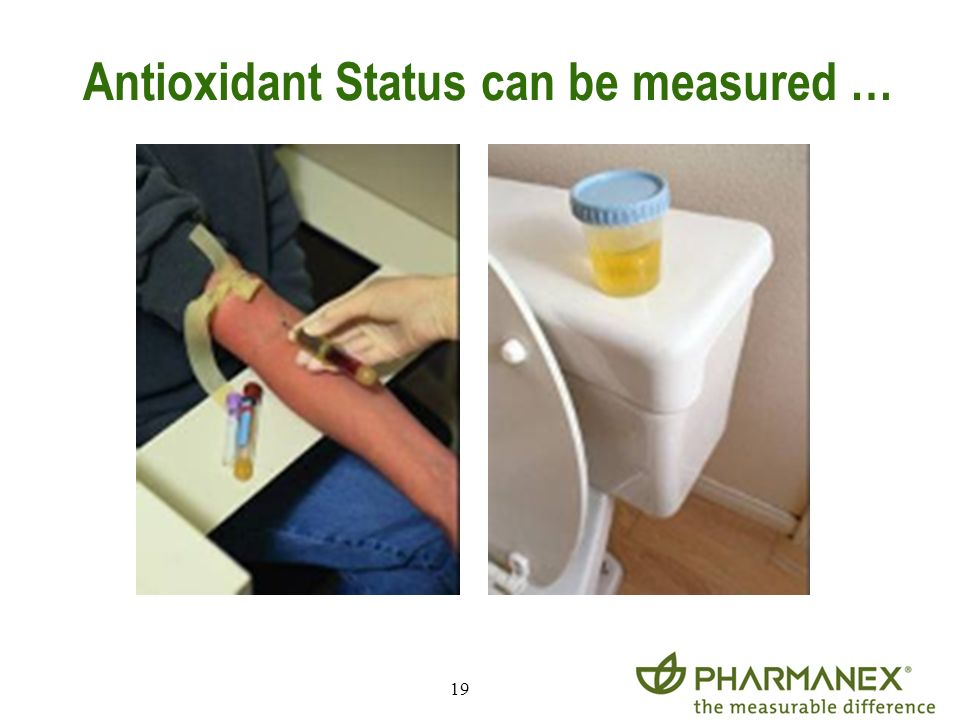 Antioxidant Status can be measured …