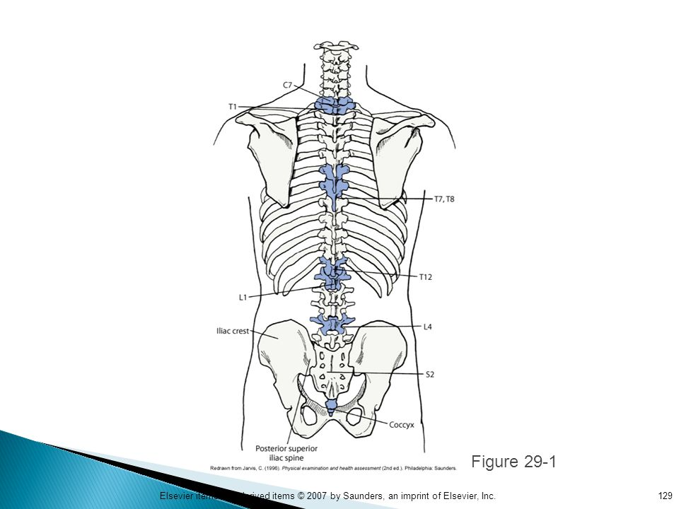 Figure 29-1