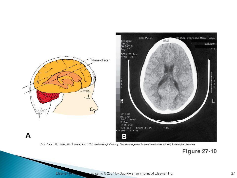 Figure 27-10