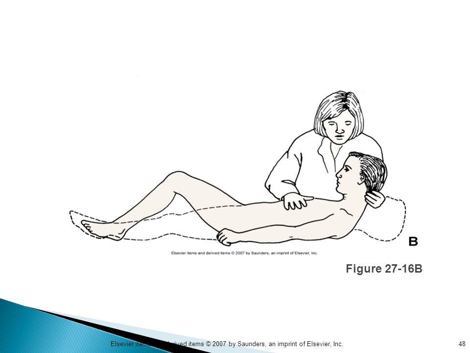Figure 27-16B