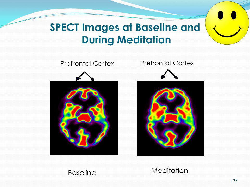 SPECT Images at Baseline and During Meditation