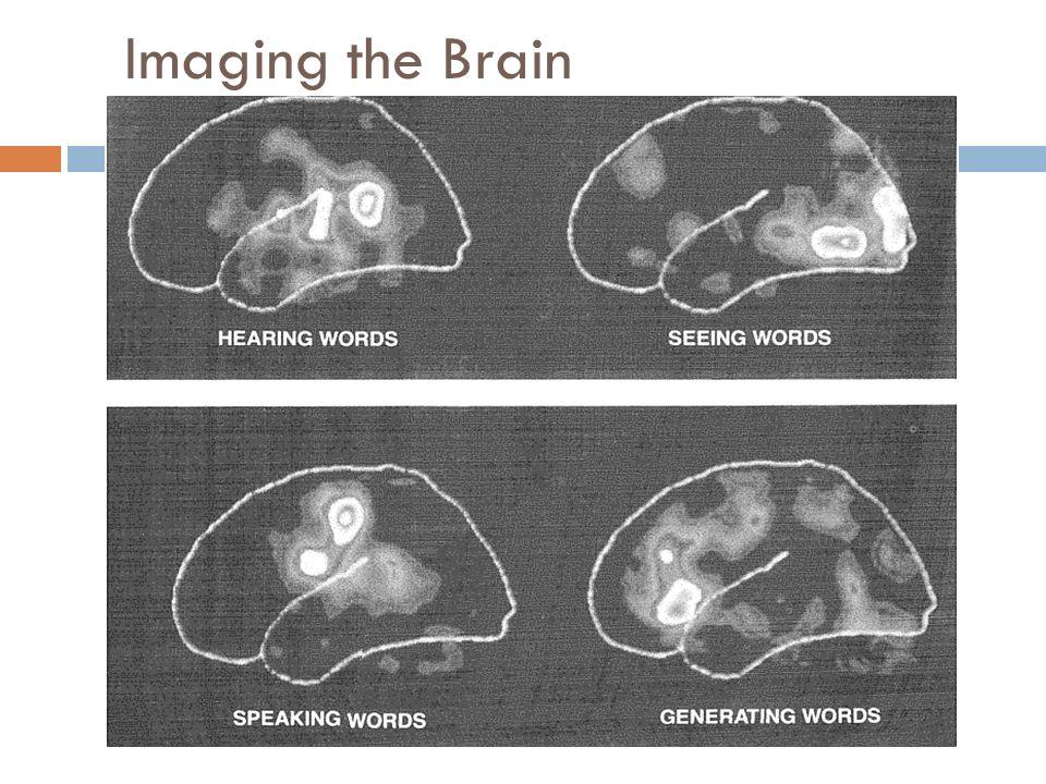 Imaging the Brain