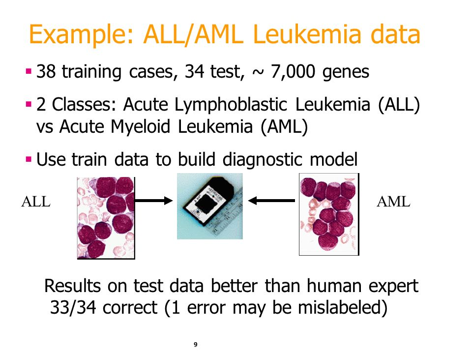 Example: ALL/AML Leukemia data
