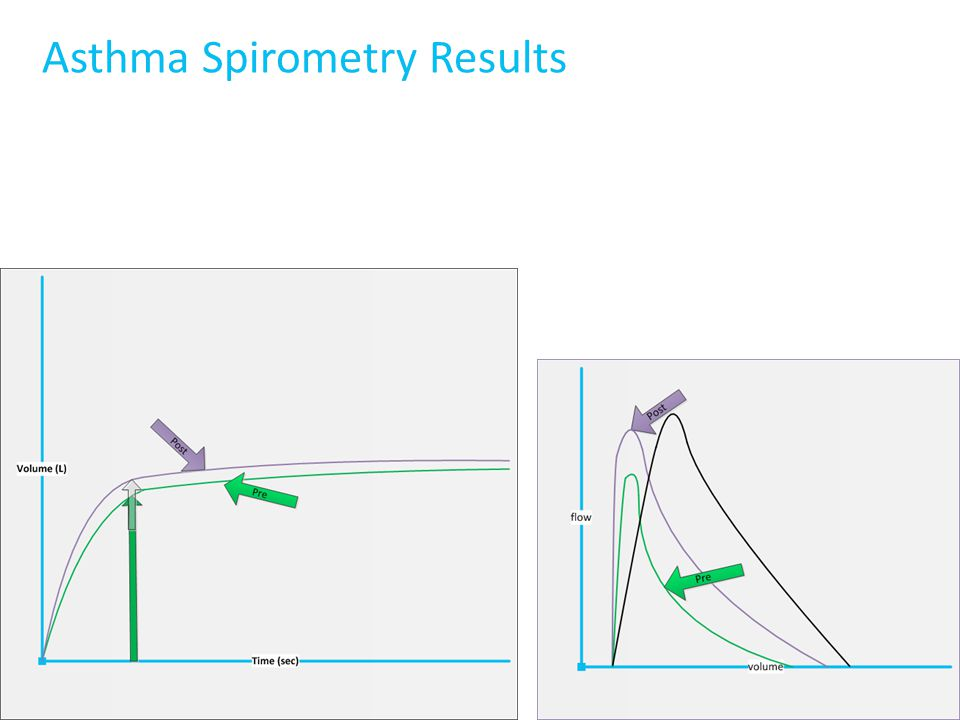 Asthma Spirometry Results