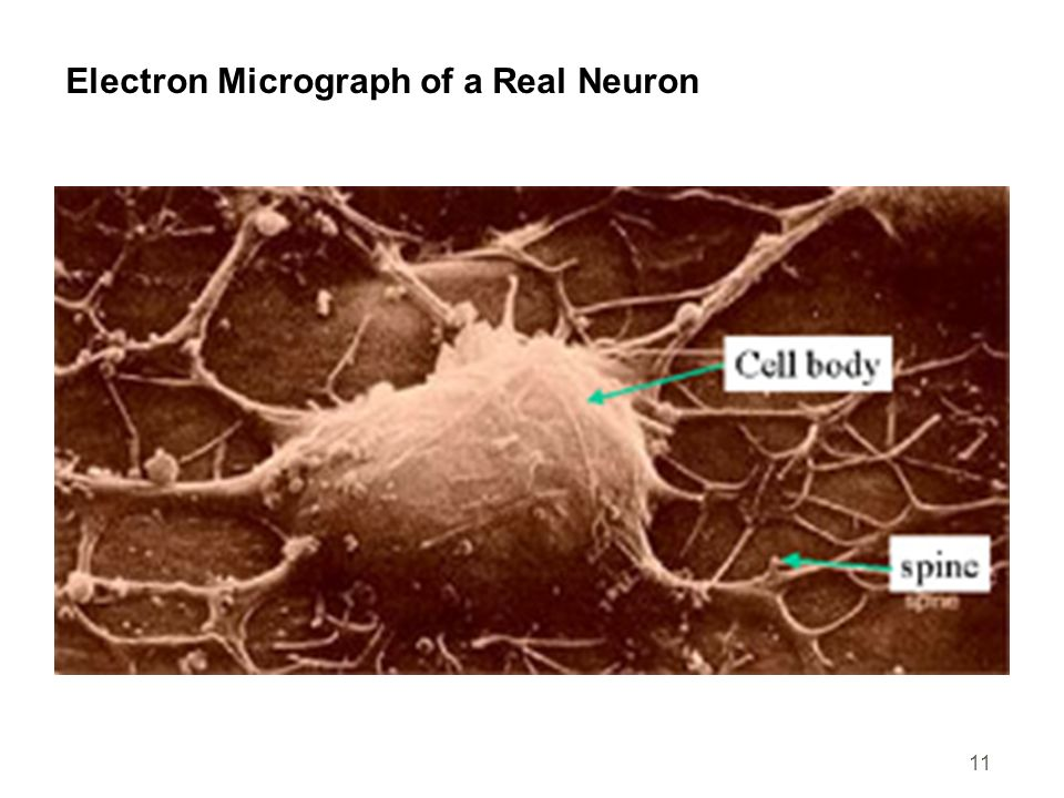 Electron Micrograph of a Real Neuron