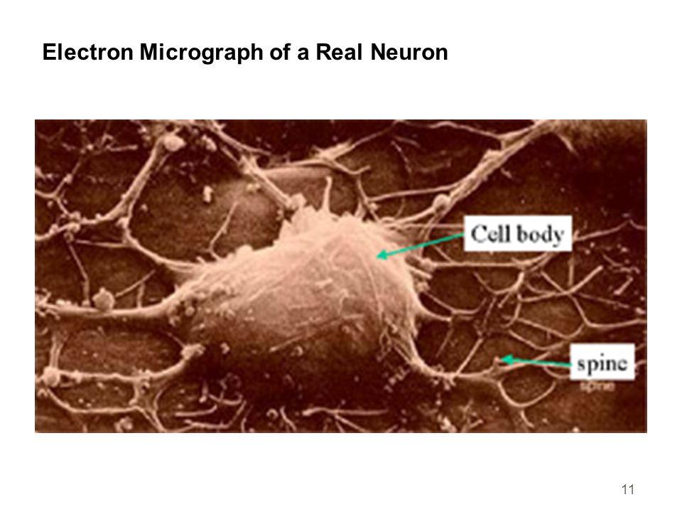 Electron Micrograph of a Real Neuron
