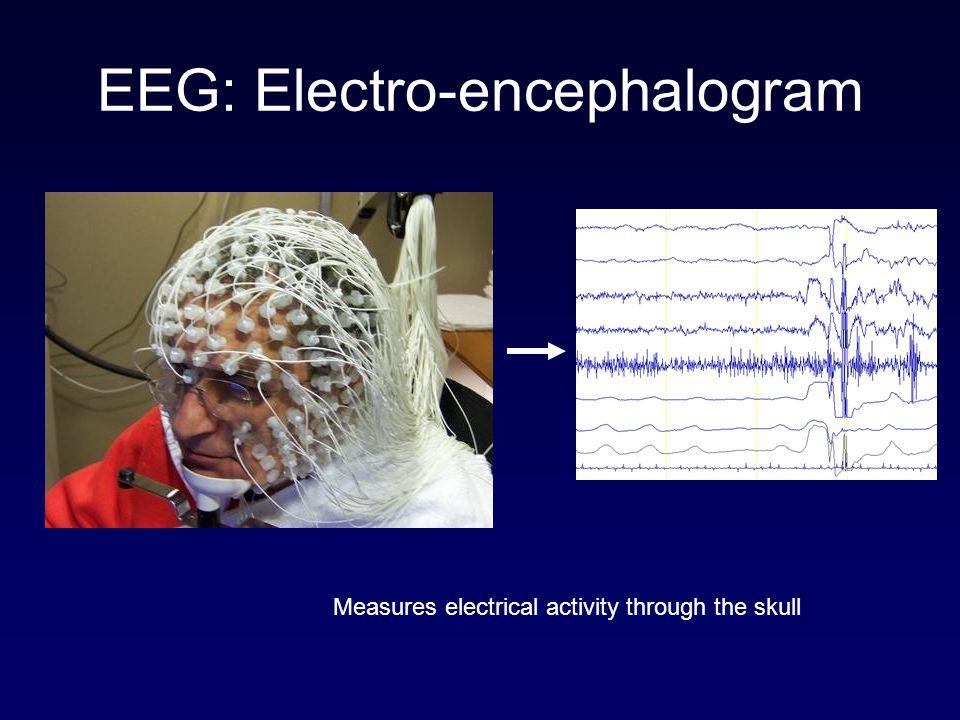 EEG: Electro-encephalogram