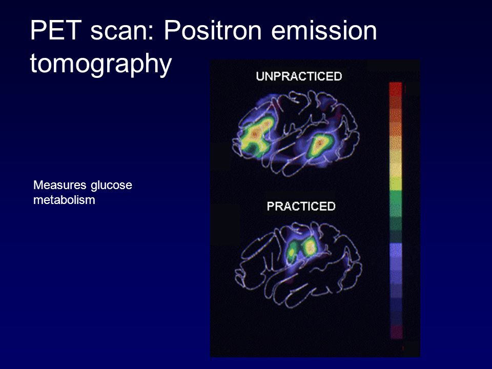 PET scan: Positron emission tomography