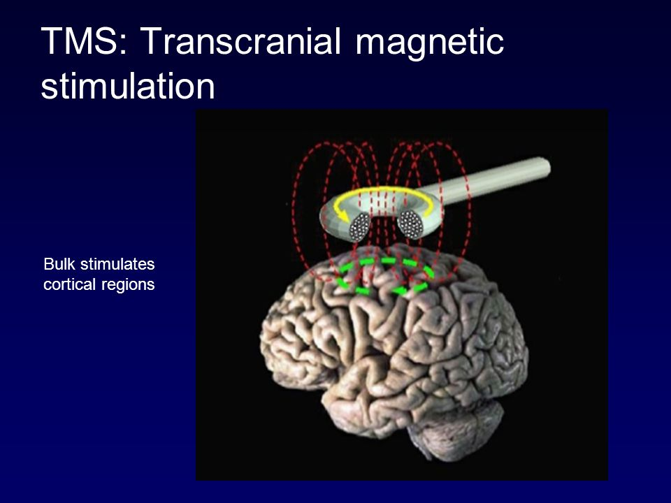 TMS: Transcranial magnetic stimulation