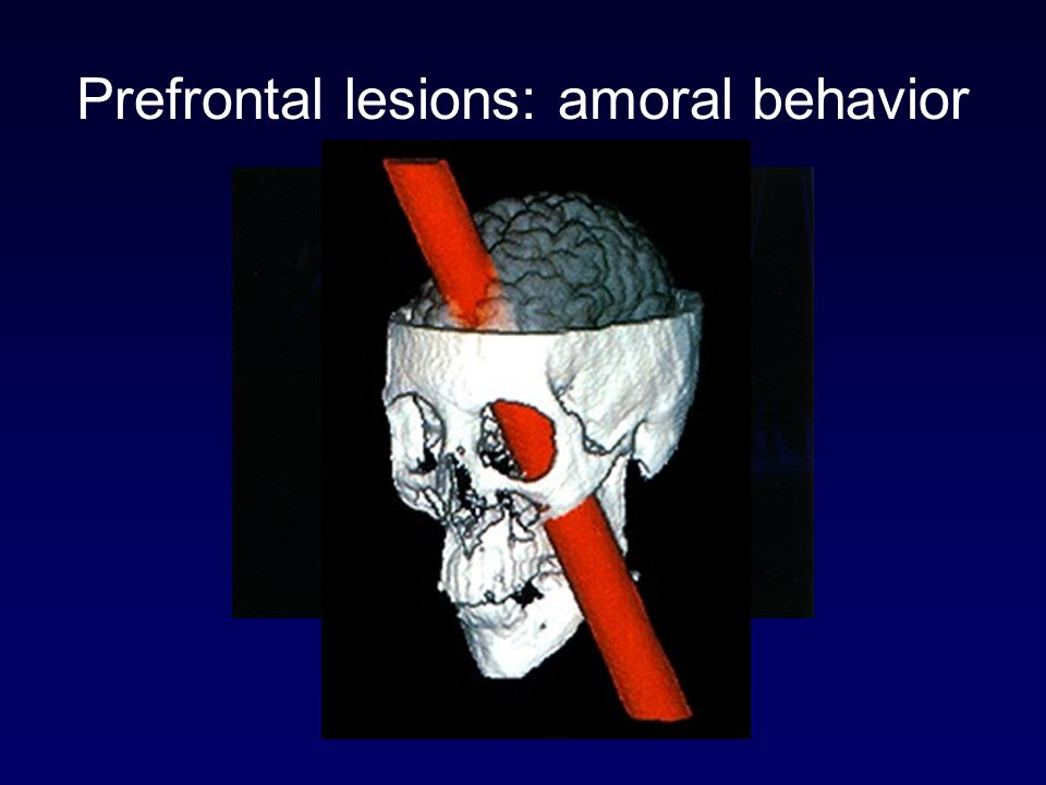 Prefrontal lesions: amoral behavior