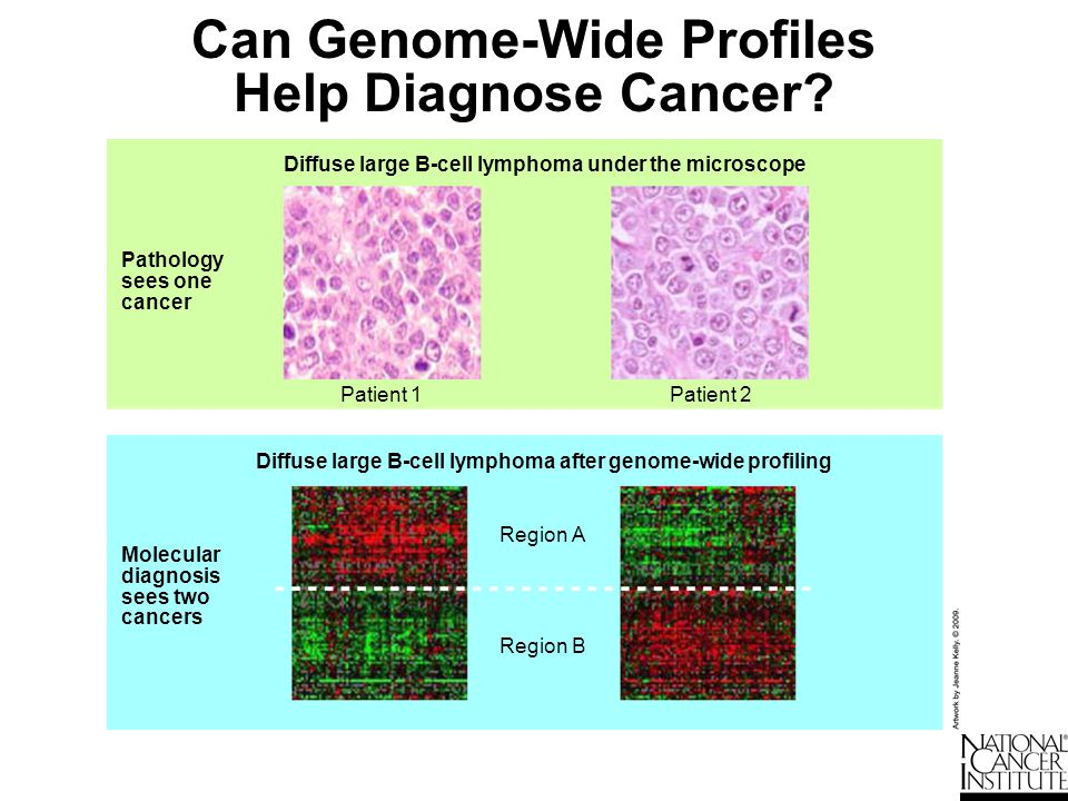 Can Genome-Wide Profiles Help Diagnose Cancer