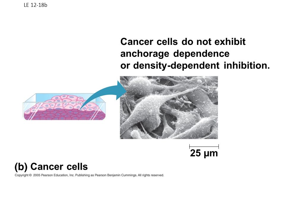 Cancer cells do not exhibit anchorage dependence